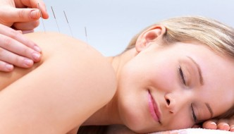 acupuncture at Lighthouse Natural Medicine
