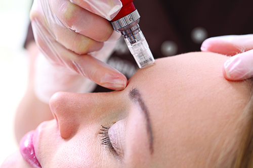 microneedling facial at Lighthouse Natural Medicine